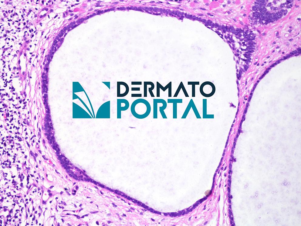 Siga a dica #5 Carcinoma Basocelular Nódulo-Cístico