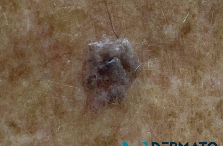 Dermatoscopia #4